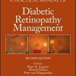 A Practical Manual of Diabetic Retinopathy Management by Peter H. Scanlon: New