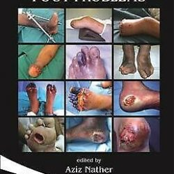 Buy Best Diabetic Foot Problems, Hardcover by Nather, Aziz (EDT), Brand New, Free ship...