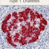 Buy Best TYPE 1 DIABETES